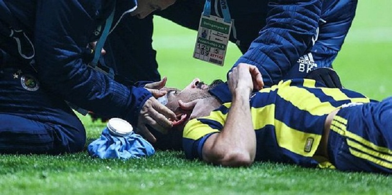 Mehmet Topal injured with a lighter during Besiktas-Fenerbahce derby